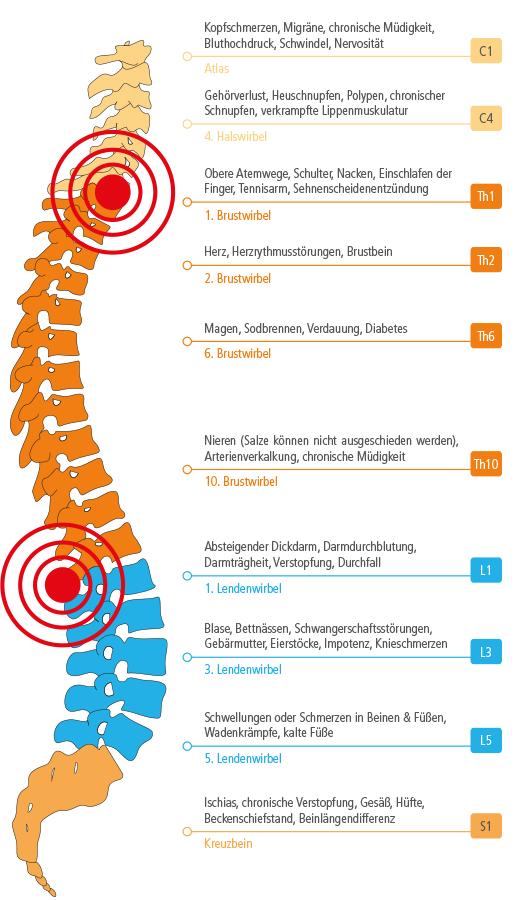Rückenschmerzen verstehen - die drei häufigsten Ursachen - 3K-Pads